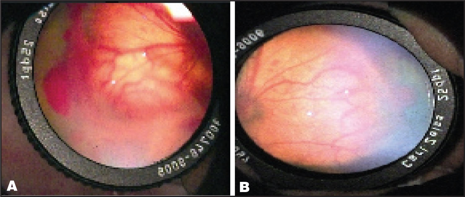 Fundus Photographs of the Second Case. (a) Aggressive, Posterior Zone 1 ROP with Moderate plus Disease and Stage-3 ROP with Extensive Epiretinal Proliferation and Localized Retinal Detachment in the Right Eye. (b) Mild plus Disease and Stage-3 ROP with Hemorrhages on and Adjacent to the Ridge in Zone-1 in the Left Eye.