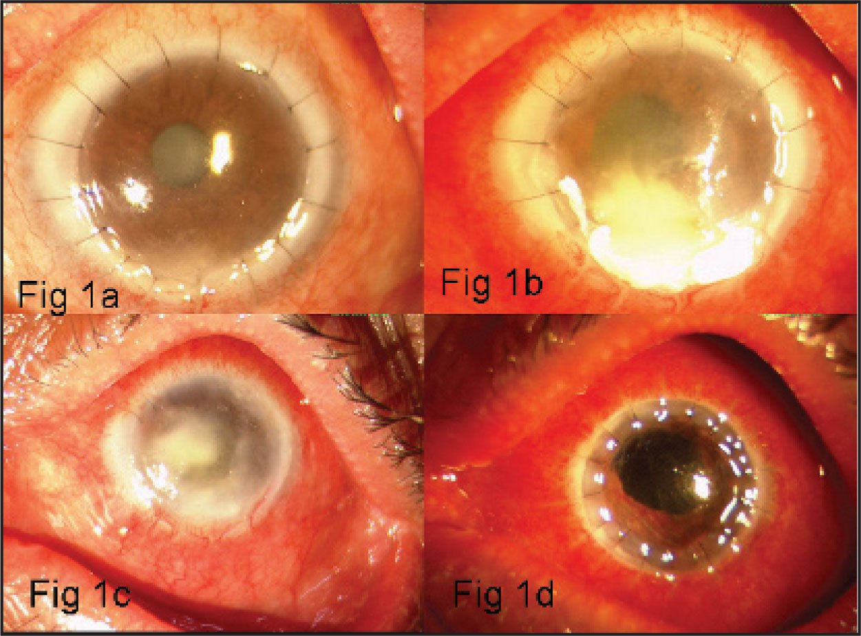 (a) Slit Lamp Biomicroscopic Photograph 5 Days Following ALTK Showing a 2 × 3 mm Stromal Infiltrate in the Graft. The Infiltrate was Seen to Involve the Graft-Host Junction at the 6-o'clock Position and was Extending Deeper into the Recipient Stromal Bed. (b) Worsening of the Infection with an Increase in the Size of Infiltrate to Involve the Inferior Half of the Graft with Associated Graft Melting. Exudates were Seen at the Graft-Host Interface, and a Diffuse Graft Edema was also Noted. (slit Lamp Biomicroscopic Photograph). (c) Dense Infiltrates Extending into the Recipient Stromal Bed After Removal of the Lamellar Graft (slit Lamp Biomicroscopic Photograph). (d) Slit Lamp Biomicroscopic Photograph Following a Therapeutic Penetrating Keratoplasty.