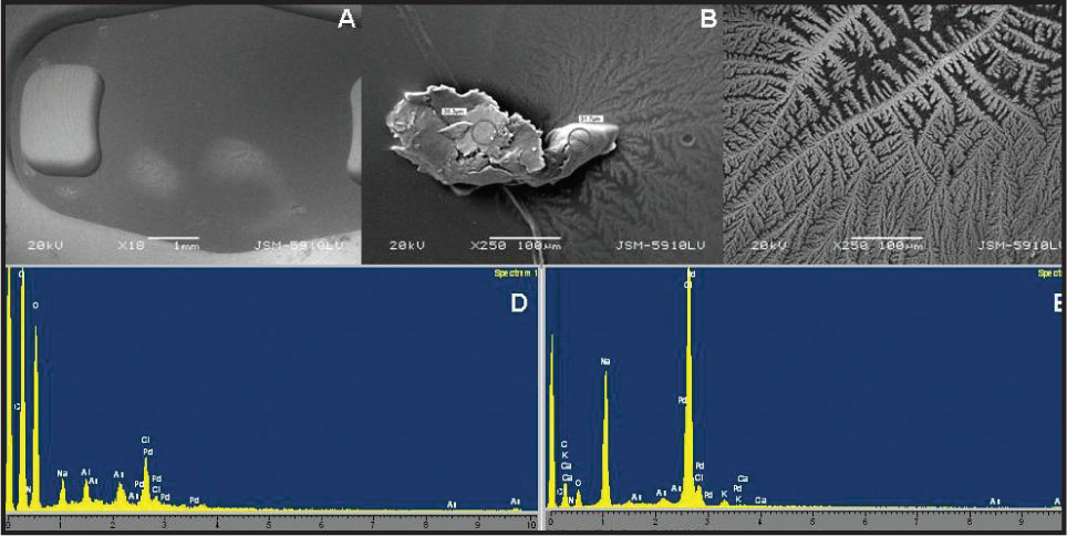 (A) Electron Microscopy of Deposits on Posterior Surface of Iris-Claw Lens. (B) a Deposit that Made Protuberances from the Surface. (C) Deposits that had Spread in a Large Area by Branching. (D) Energy Dispersive Spectroscopy of the Protuberated Deposit. (E) Energy Dispersive Spectroscopy of the Branched Deposits.