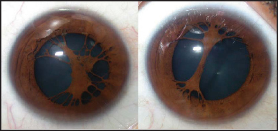 Remnants of the Pupillary Membrane Preoperatively.