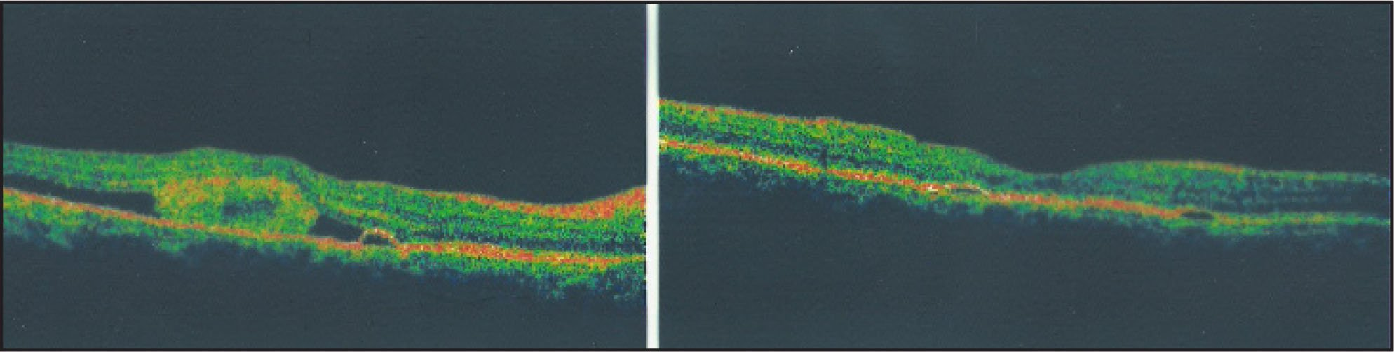 Left (pretreatment): The Optical Coherence Tomography Image Shows Loss of Foveal Contour, Presence of High Reflective Globular Mass (fibrinous Exudates), Subretinal Fluid, and a Tiny RPE Detachment. Right (posttreatment): The Optical Coherence Tomography Image Shows Restoration of Foveal Contour and Disappearance of Subretinal Exudates and Fluid and Somewhat Flattened Tiny Pigment Epithelial Detachment.