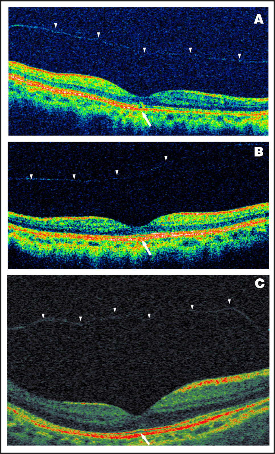 Images Obtained During Follow-Up. (A) One Month Later, OCT 3 Shows a Small Outer Retinal Defect (arrow) and the Faint Reflectivity of the Vitreomacular Detachment (arrowheads). (B) Six Months After the Initial Visit, OCT 3 Shows that the Outer Retinal Defect has Disappeared (arrow) with Faint Reflectivity Seen as a Thin Line of Complete Vitreomacular Separation (arrowheads). (C) Six Months After the Initial Visit, OCT Ophthalmoscope Shows that the Photoreceptor Layer Abnormality has Disappeared (arrow), with Faint Dome-Shaped Reflectivity Appearing as a Thin Line of Complete Vitreomacular Separation (arrowheads).