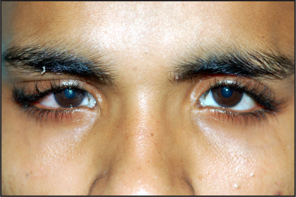 Clinical Photograph of the Patient Showing Mass in the Right Lacrimal Gland Area of the Right Side Causing S Shaped Ptosis.