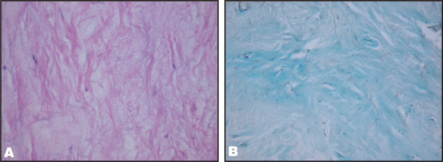 (A) Histopathology from the Right Side Obital Mass Showing Mucinous Degeneration with Interspersed Bundle of Spindle Cells with Thick Hyalinized Collagen Due to Long Standing Duration of the Tumour (hematoxylin and Eosin, × 400). (B) The Lesion Stained Positive with Alcian Blue (Alcian Blue, × 400)