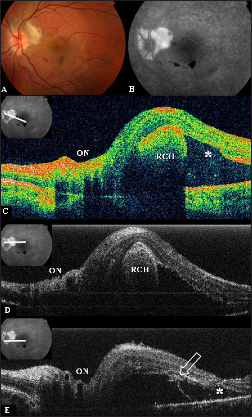(A) Fundus Photography OD of Case # 2 Showing a Peripapillary Subretinal Mass with Associated Retinal Striae and Hemorrhages, and Serous Macular Detachment. Some Peripapillary Subretinal Gliosis is Seen over the Mass. (B) Fluorescein Angiography Showing Intense Late View Hyperfluorescence of the Mass with Minimal Leakage. (C) Stratus Optical Coherence Tomography (OCT) Image OS Showing the Mass Contiguous with the Outer Retina with Associated Macular Detachment. The Macula Adjacent to the Mass (*) Shows Loss of the Outer Retinal Layers. (D) High Resolution Fourier-Domain OCT Image OS Showing a Peripapillary Round Mass Bulging from the Outer Retina into the Subretinal Space with Intense Shadowing. (E) High Resolution Fourier-Domain OCT Image of the Left Macula (*) Adjacent to the Mass Showing Severe Disruption of the Photoreceptor Layer which Appears Partially Ripped from the Overlying Detached Macula (arrow). The High Resolution Fourier-Domain OCT Instrument Used was Developed at the University of California Davis and Provides Axial Resolution of 4.5 μm and Transverse Resolution 10 to 15 μm.2 ON—Optic Nerve; RCH—Retinal Capillary Hemangioma