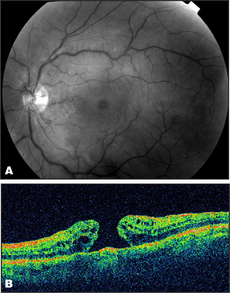 Five Months After the Intravitreal Injection of Bevacizumab a Full Thickness Macular Hole has been Developed as Shown in the Fundus Photo(A) and in the OCT(B).