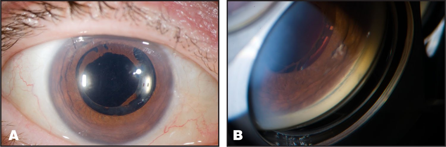 Postoperative Week Three. (A) Color Slit Lamp Photograph Right Eye Showing Absence of Air in AC, Remnants of Broken Posterior Synechiae, and a Clear Cornea. (B) Gonioscopy Photograph Right Eye Showing Deep Anterior Chamber Without Peripheral Anterior Synechiae.