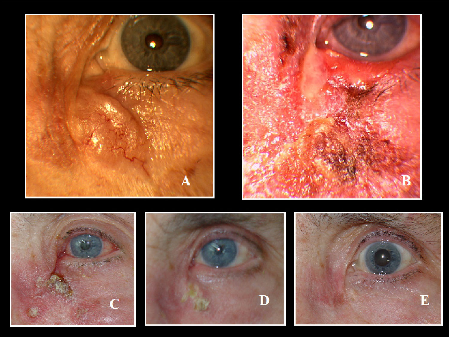 (A) Recurrent Nodular BCC with Superficial Teleangiectasic Vessels at the Nasogenian Groove. (B) Extensive Erythema and Crusting, Retractile Medial Ectropion and Conjuctival Mucous Secretions After Two Weeks of Treatment. (C) Diminution of the Severe Reaction in the Fourth Week of Treatment. (D) Persistence of a Crust in the Primitive Lesion and Clearance of the BCC After Six Weeks. (E) Excellent Clinical and Cosmetic Outcomes Six Months After Treatment Suspension.