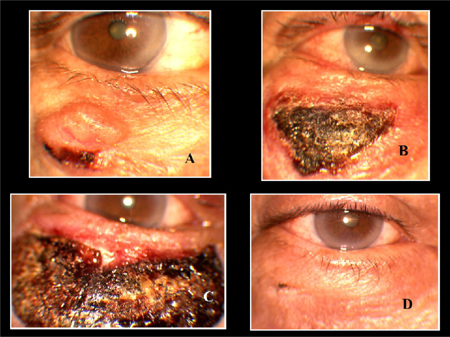 (A) Nodular BCC with Crusting Below the Inferior Right Eyelid. (B) Wide Crust Similar to a Third-Degree Burn During the Third Week of Treatment. (C) During the Fourth Week, the Crust Extended Through Most of the Lower Eyelid's Skin Thickness, Similar to a Severe Burn or Necrosis. (D) Excellent Clinical and Cosmetic Outcomes After Two Months of the Treatment.