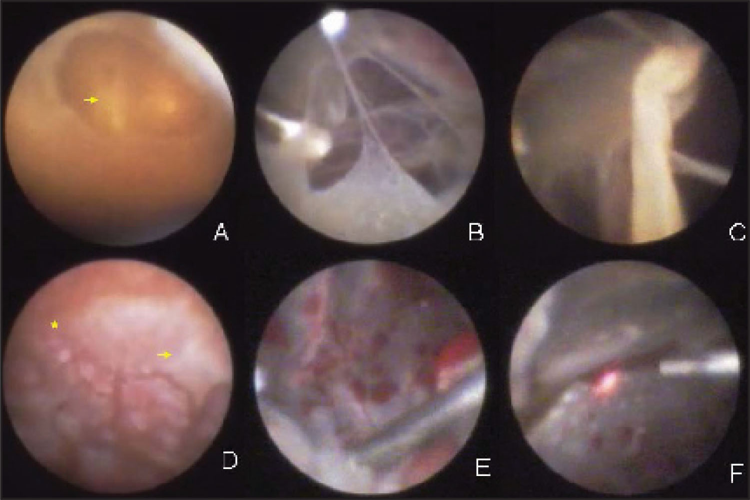 Endoscopic Views During Vitrectomy of Case 2: (A) Endoscopic Visualization of Cornea Showed a Central Corneal Laceration that Had Been Primary Repaired(arrow), and Opacification of Cornea. (B) Fibrins Formed in Vitreous Cavity Were Removed Under Endoscopic Visualization. (C) The Severely Infected and Rolled Edge of the Giant Retinal Tear Was Excised with a Vitrectomy Cutter. (D) There Were Scattered Necrotic Lesions (star) and Inflammatory Exudates (arrow) in Swollen Pigment Epithelium Layer. (E) The Retina Was Clearly Visualized After the Infectious Vitreous Was Completely Excised. (F) The Retinal Tears Were Treated by Photocoagulation.