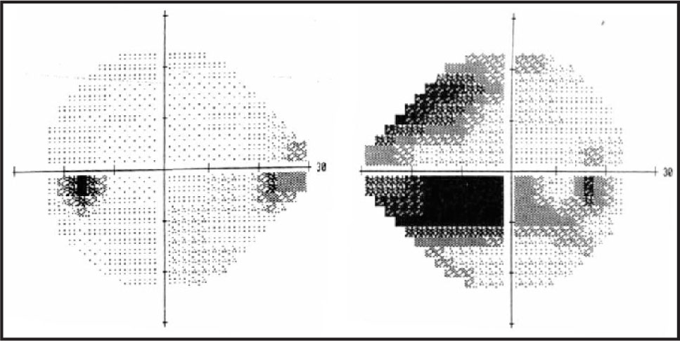 (Right) Humphrey Visual Field (central 24–2) of the Right Eye is Showing Inferior Central, and Paracentral Changes that Extend to the Optic Nerve. There is also a Supranasal Deficit (MD = −16.00 DB, PSD = 11.93 DB). (Left) Humphrey Visual Field (central 24–2) of the Left Eye is Showing a Small Inferior Nasal Step (MD = −3.78, PSD = 4.53 DB).