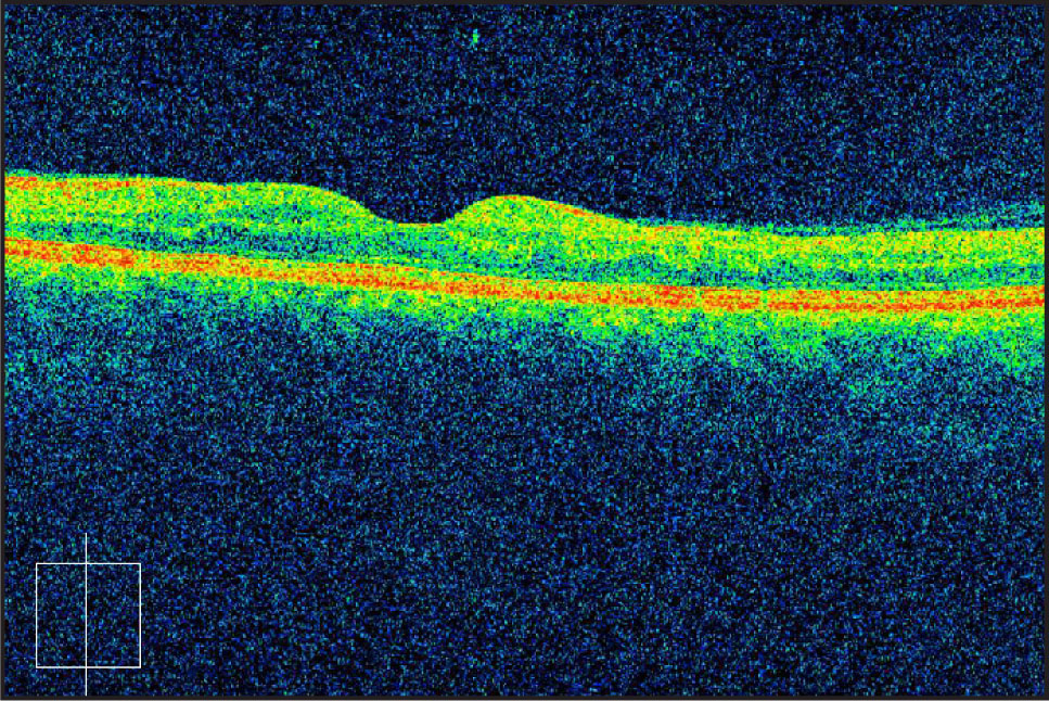 Cirrus HD-OCT of the Right Eye Demonstrated Resolution of the Subretinal Fluid. RPE Was Noted to be Intact (Central Subfield Thickness = 256 μm, Volume = 8.1 mm3, Average Thickness = 225 μm).