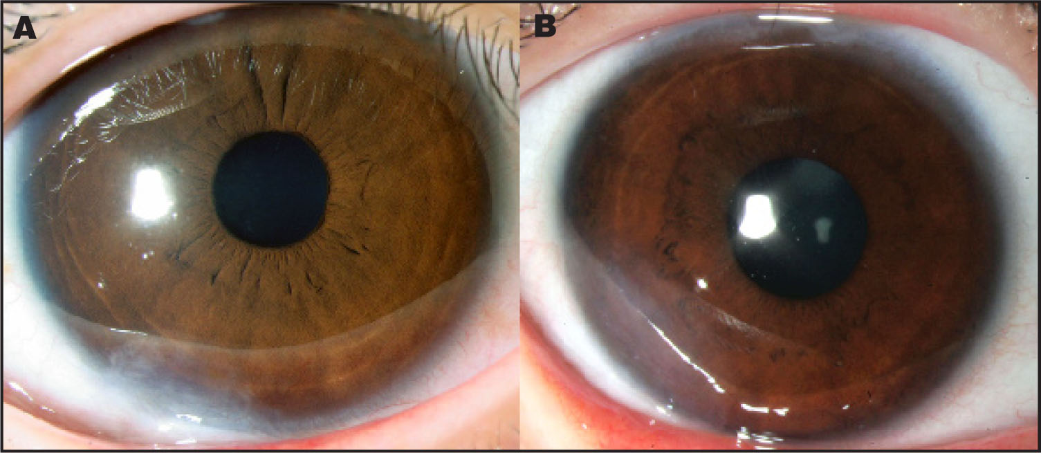 (A) Case 1 at Postoperative 36 Month; (B) Case 2 at Postoperative 20 Months After Limbal Cell Transplantation for Limbal Dermoid.