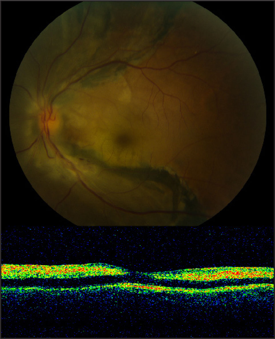 (Top) Fundus Photograph of the Left Eye Demonstrating Marked Whitening and Edema of the Central Macula. (Bottom) Optical Coherence Tomography Demonstrating Increased Reflectivity in the Inner Retina and Decreased Reflectivity (shadowing Effect) in the Retinal Pigment Epithelium and Photoreceptor Layer.