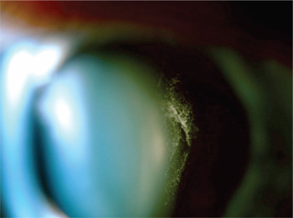 Right Eye. Slit-Lamp Photograph Shows Meshwork of Linear Vitreous Opacities Attached to Posterior Lens Surface.