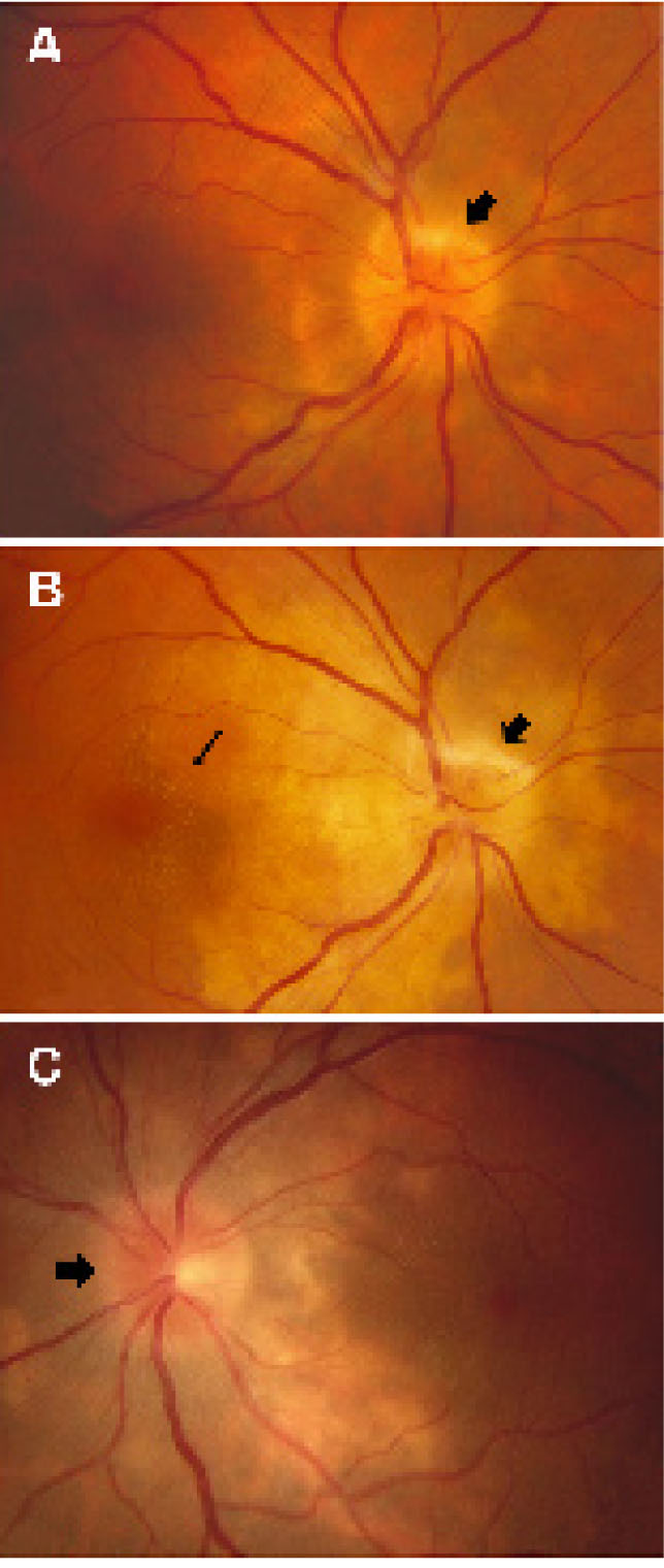 Onset and Evolution of Choroidal Lesions. (A) Retinography of the Right Eye (RE) with Swelling and Loss of Original Contour of Optic Disk (arrow) Suggesting Optic Neuritis and Choroidal Infiltrates. (B) Optic Neuritis (arrow) Associated with Circumscribed Peripapillary Choroidal Infiltration and Macular Involvement (fine Arrow) in the RE Were Observed 2 Years After the Onset of Behçet's Disease. (C) the Left Eye (LE) Presented Optic Neuritis (arrow) and Peripapillary Area with Choroidal Infiltration 3 Years After the Diagnosis of Behçet's Disease.