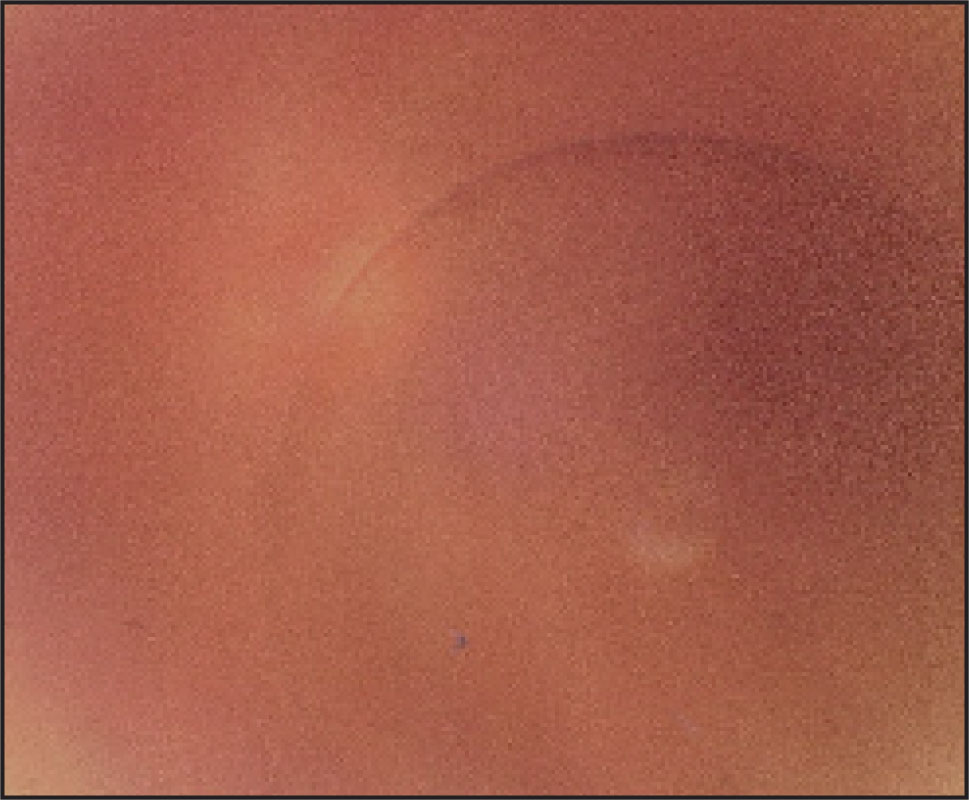 Fundus Photo at Initial Visit of the Free-Floating Vitreous Cyst.