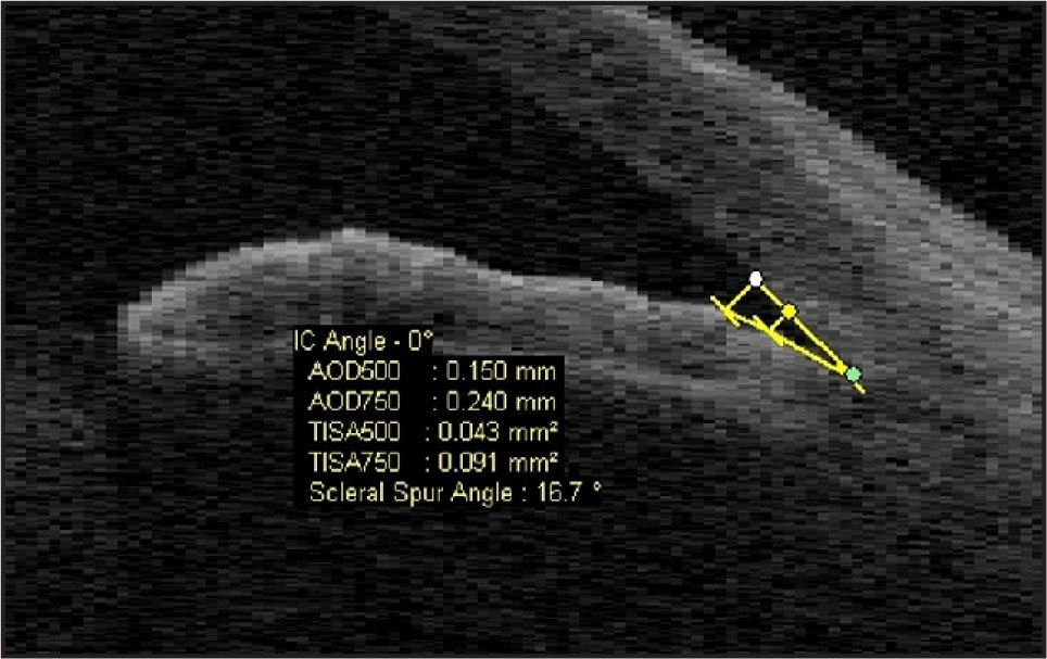 ASOCT Image of the Angle in Convex Iris Configuration with Room Light Condition
