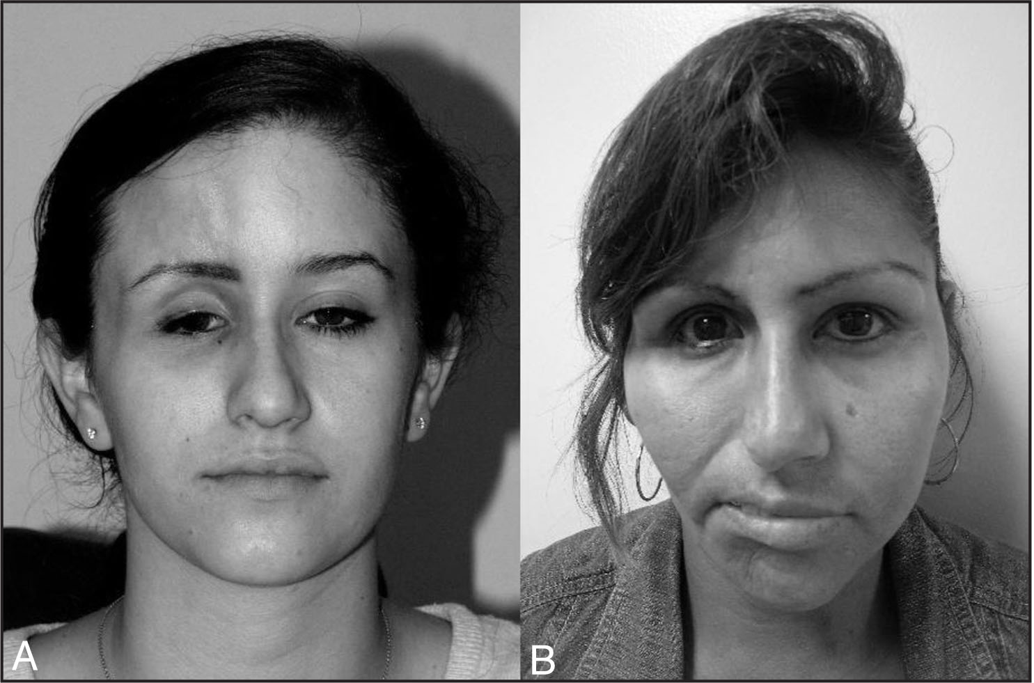 (A) A 17-Year-Old Girl (case 1) and (B) a 32-Year-Old Woman (case 2) with Parry–Romberg Syndrome Involving the Right Side of the Face.