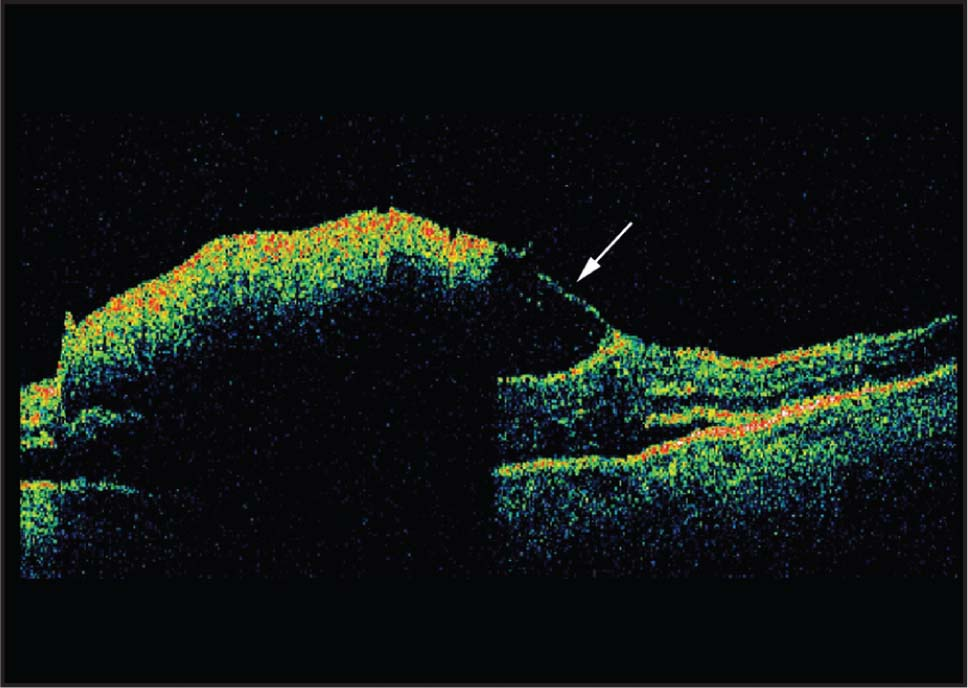 Optical Coherence Tomography of the Left Macula Clarified the Location of Hemorrhage Associated with the Retinal Arterial Macroaneurysm as Being Sub-Internal Limiting Membrane (arrow) and Subretinal in Location.