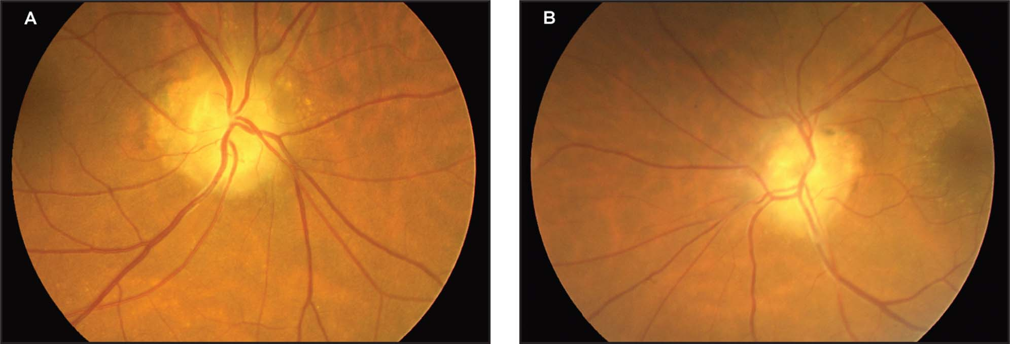 Color Photographs of the Optic Disc Drusen. (A) Right Eye. (B) Left Eye.