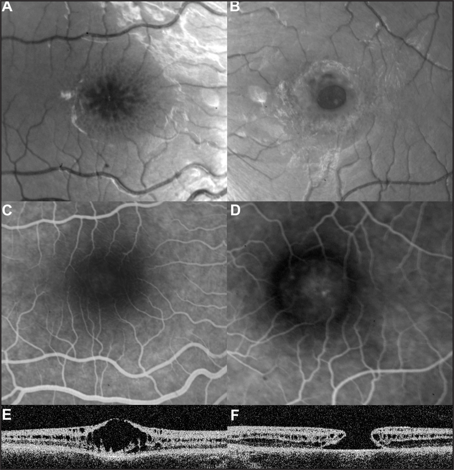 Imaging of the Right Eye Shows the Typical Stellate Maculopathy (A) Without Leakage During Fluorescein Angiography, Thus Differentiating from Cystoid Macular Edema (C), and Foveal Schitic Cavities on Optical Coherence Tomography (E). Imaging of the Left Eye Shows a Full-Thickness Macular Hole (B), with Hyperfluorescence in the Area of the Retinal Defect During Fluorescein Angiography (D), and Unequivocal Diagnosis Is Obtained with Optical Coherence Tomography that also Reveals Schitic Cavities Surrounding the Hole (F).