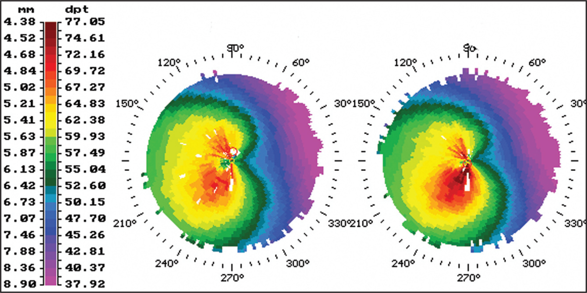 Corneal Topography (Technomed C–Scan, Baesweiler, Germany) 6 Months Before (left) and Immediately Before (right) Corneal Collagen Cross-Linking Treatment Showing the Progression of Keratoconus in a 6-Month Period.