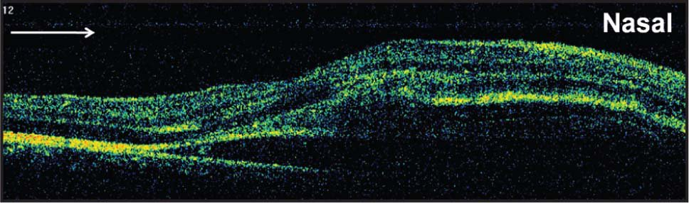 Spectral Domain Optical Coherence Tomography Raster Scan Shows Submacular Elevation Involving the Fovea. High Backscattering of the Retinal Pigment Epithelium Is Clearly Seen Nasal to the Fovea with Preservation of Retinal Architecture. The Arrow Indicates the Direction of the Line Scan (Temporal to Nasal).