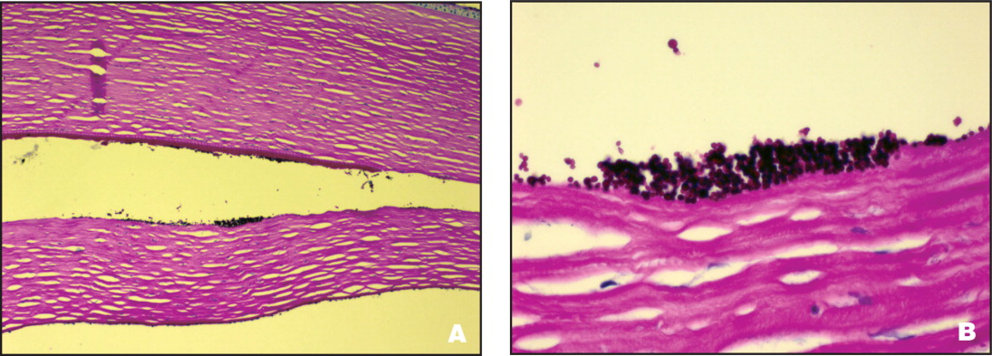 Case 1. (A) The Descemet's Stripping Endothelial Keratoplasty Lenticule Is Separating from the Posterior Surface of the Recipient Cornea. There Is a Focal Accumulation of Yeast on the Anterior Surface of the Lenticule (Periodic Acid-Schiff Stain, Original Magnification ×25). (B) The Yeast Form a Colony on the Anterior Surface of the Lenticule at the Interface (Periodic Acid-Schiff Stain, Original Magnification ×120).