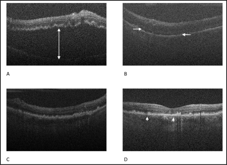 Spectral-domain optical coherence tomography images obtained preoperatively, intraoperatively, and postoperatively from case 1. (A) Preoperative imaging confirms a macula-off retinal detachment (arrow). (B) Intraoperative image, after instillation of perfluoro-n-octane, shows incomplete flattening of the retina with residual subretinal fluid (arrows). (C) Postoperative image at 4 months shows resolution of subretinal fluid under silicone oil. (D) Postoperative image at 5 months following silicone oil removal demonstrates disruption of the inner segment–outer segment junction (arrowheads).