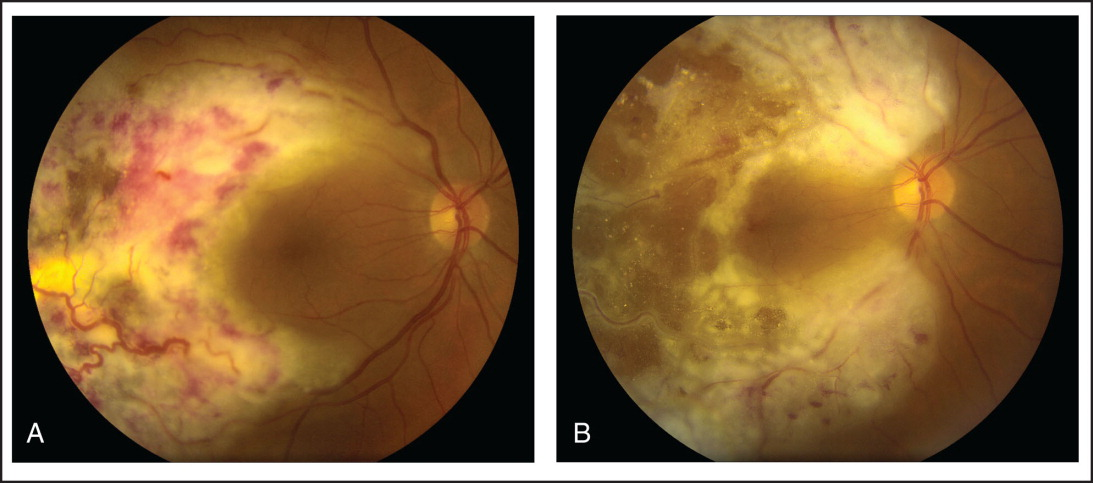 (A) Fundus photograph at presentation, showing a white retinal infiltrate, vascular changes, and exudates in the right eye. (B) Six weeks following radiation therapy, the extent of retinal infiltration was increased.