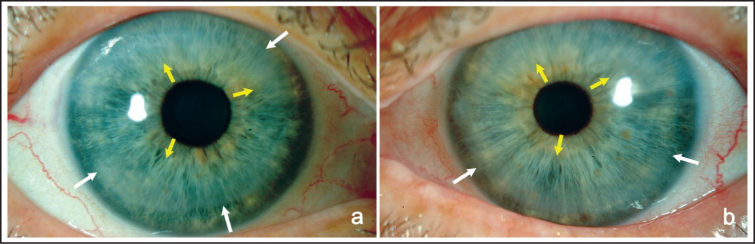 Slit-lamp pictures of the patient. (A) Right eye and (B) left eye. White arrows demonstrate outer margin of the degeneration. Yellow arrows demonstrate inner margin of the degeneration.