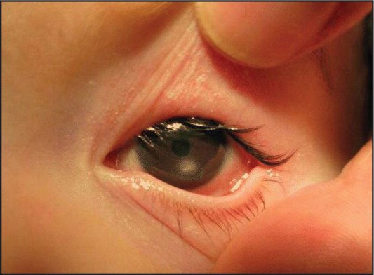 A corneal ulcer was visible on opening of eyelids.