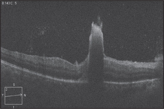 Optical coherence tomography scan of the right eye. A retinochoroidal lesion can be seen breaking through the retina into the vitreous cavity. It is of high reflectance, causing decreased choroidal reflectivity. There is a speckled appearance to the vitreous, signifying vitritis.