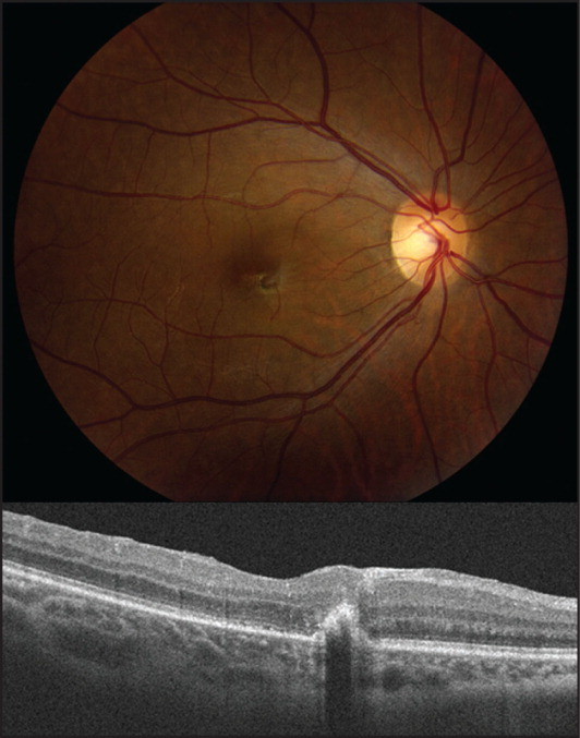 Color fundus photograph and optical coherence tomography scan of the right eye after repeat vitrectomy with membrane peel for macular pucker. Visual acuity is 20/50, limited by a macular scar.