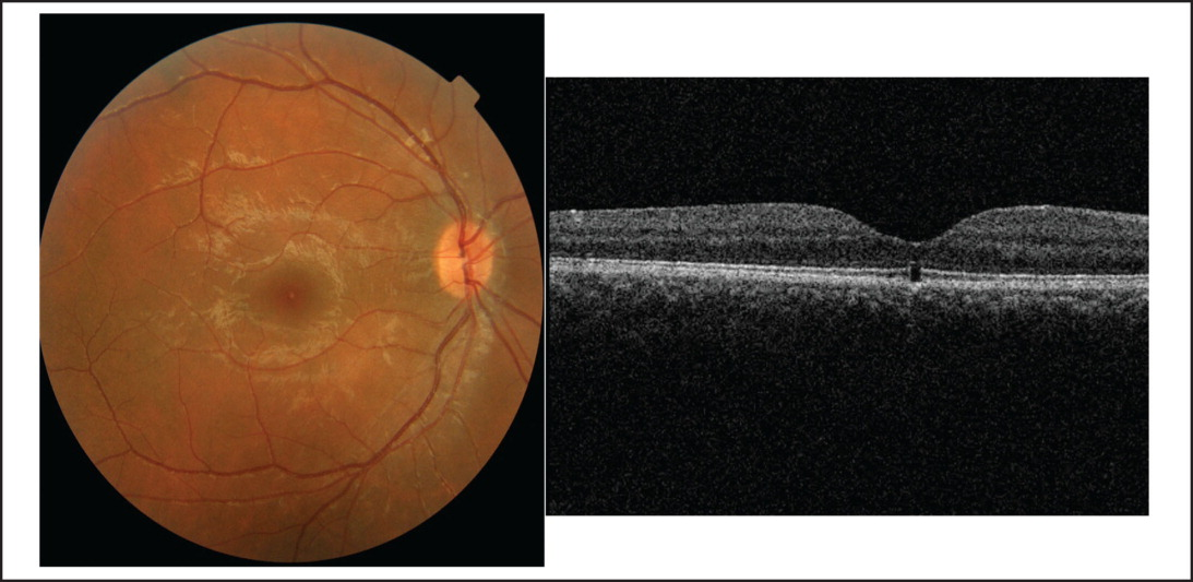 Fundus photograph (left) and spectral-domain optical coherence tomography (right) at 6 months shows residual disruption of outer retinal layers.