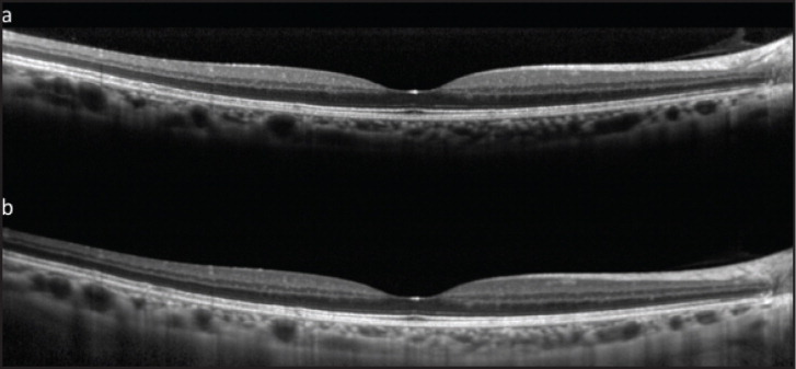 Enhanced Depth Imaging Optical Coherence Tomography