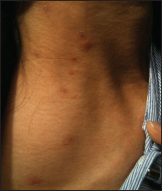 A 28-year-old woman presenting with vesicular rash over neck and upper chest spanning multiple dermatomes.