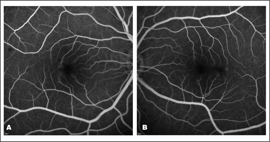 (A) Fluorescein angiogram showing small vessel vasculitis in the right eye. (B) Fluorescein angiogram showing small vessel vasculitis in the left eye.