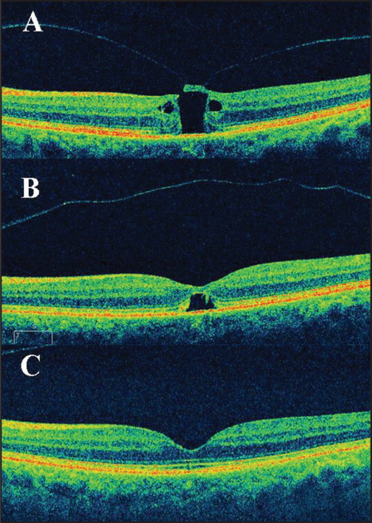 (A) Spectral-domain optical coherence tomography (SD-OCT) of case 1 at presentation showed that the separation of the vitreous from the macula in the left eye was not complete, with adhesions of the posterior hyaloid to the roof of the macular hole and a perifoveal posterior vitreous detachment. Cystoid spaces on the level of the inner nuclear layer were visible; the basal and minimal diameters were 392 and 338 μm, respectively. (B) SD-OCT of case 1 at 1 week after prone positioning showed the posterior hyaloid was completely detached from the retinal layers in the macula; retinal tissue bridging is evident beginning from the inner layers. (C) SD-OCT of case 1 at 1 year of follow-up showed the foveal architecture was completely restored.