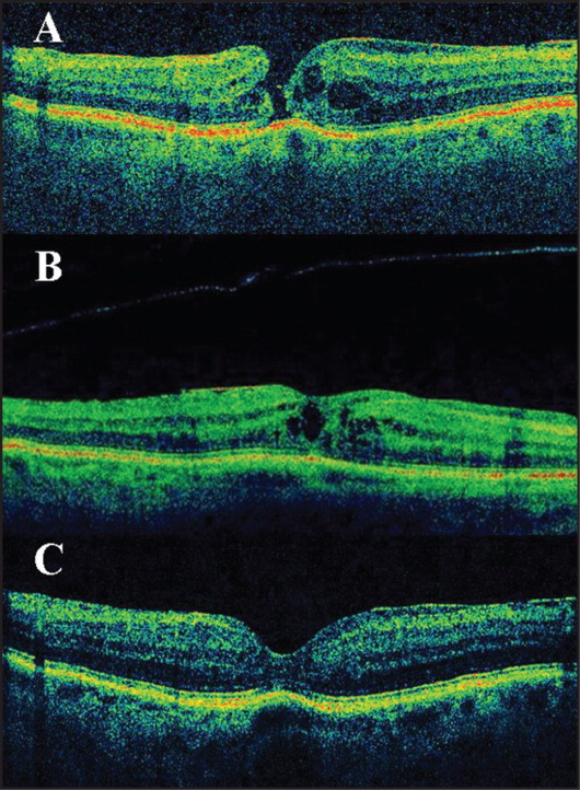 (A) Spectral-domain optical coherence tomography (SD-OCT) of case 2 at presentation showed full-thickness retinal defect in the foveal area associated with perilesional cystoid spaces and a slight epiretinal membrane. The basal and minimal diameters were 250 and 237 μm, respectively. (B) SD-OCT of case 2 at 1 year after presentation showed a posterior hyaloid detachment in the macula and the slight epiretinal membrane attached to the neuroepithelial surface. The retinal defect was closed in the inner and outer layers; central cystoid spaces were present. (C) SD-OCT of case 2 at 1 year and 3 months after diagnosis revealed a normal foveal configuration and an epiretinal membrane without surface wrinkling; minor irregularities in the line of the photoreceptors were evident.