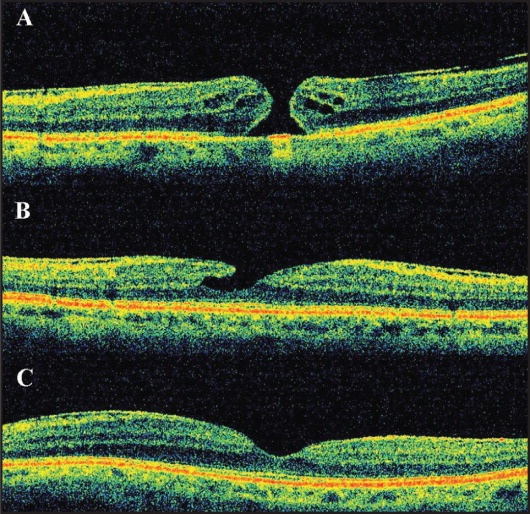 (A) Spectral-domain optical coherence tomography (SD-OCT) of case 3 at presentation showed a full-thickness retinal defect in the foveal area with perilesional cystoid spaces and an epiretinal membrane are evident. The basal and minimal diameters were 690 and 203 μm, respectively. (B) SD-OCT of case 3 at 5 months after presentation revealed a closure of the macular hole beginning from the outer layers, reproducing the shape of a lamellar macular hole. (C) SD-OCT of case 3 at 6 months after presentation showed that the foveal architecture was completely restored and the epiretinal membrane was still evident.