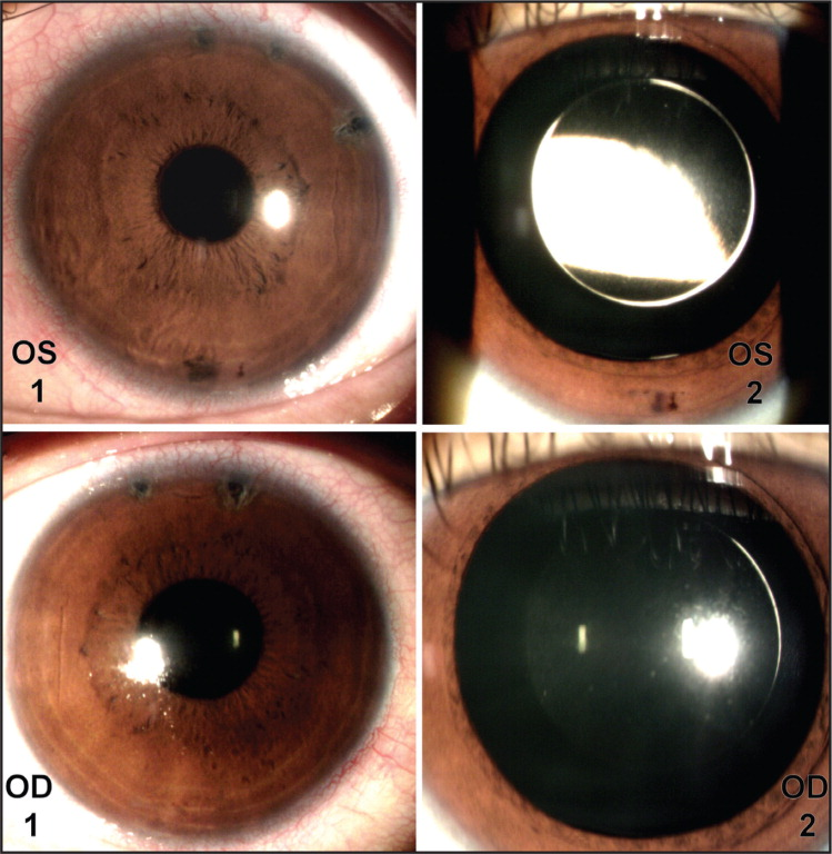 Slit-lamp photographs after toric implantable collamer lens (TICL) in both eyes. OS 1: Undilated left eye with peripheral laser iridotomies at 12:00, 13:00, and 14:30 clock hours. OS 2: Dilated left eye with centrally positioned TICL. OD 1: Undilated right eye with peripheral laser iridotomies at 11:00 and 12:30 clock hours. OD 2: Dilated right eye with centrally positioned TICL.