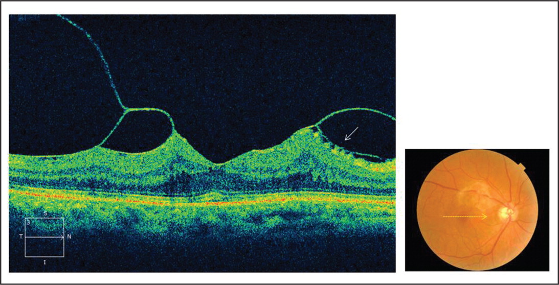 Spectral-domain optical coherence tomography of a 72-year-old man (case 1) shows a perifoveal posterior vitreous detachment. The vitreous cortex is separated in the perifoveal area and its posterior lamella adheres to the retina, which induces retinal elevation at the perifovea and surface wrinkling nasal to the fovea (white arrow). The fovea is not elevated and the junction between the photoreceptor inner and outer segments is intact. The fundus is scanned in a 6.0-mm line along the horizontal axis through the fovea (yellow arrow).