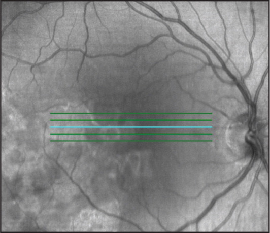 Spectral-domain optical coherence tomography topographic view of the macular area at presentation.