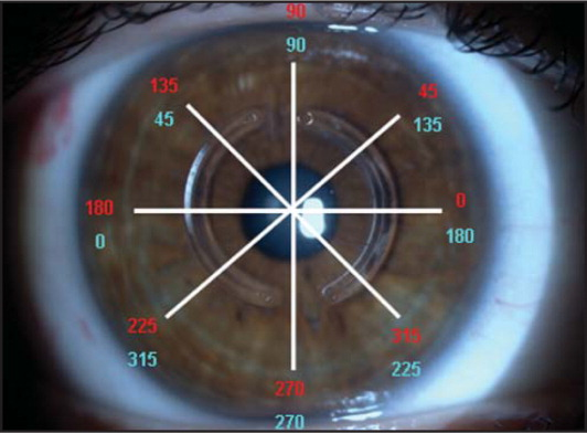 Demonstration of the meridians projected on the cornea for the four recorded tomograms. Red color represents the axial information for the right eye and blue color for the left eye.