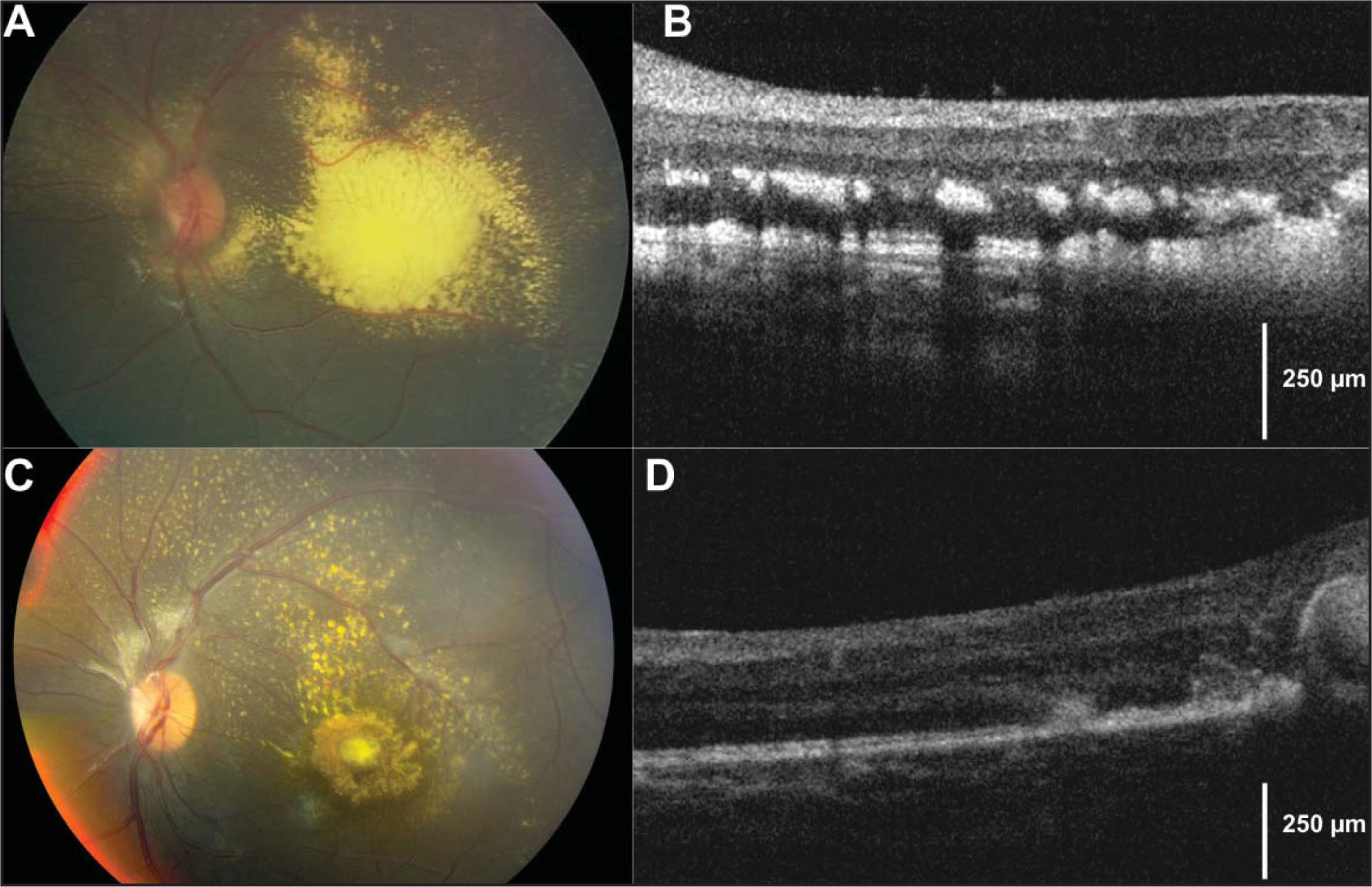 (A) Retcam (Clarity Medical Systems, Pleasonton, CA) photograph of the left eye demonstrating subretinal exudation at baseline examination. (B) Baseline intraoperative spectral-domain optical coherence tomography revealed subretinal exudation and extensive intraretinal exudates at the level of the outer plexiform layer that creates a shadowing effect. Central macular thickness was measured to be 397 microns. (C) Retcam photograph of the left eye demonstrating reduced exudation following 1 year of treatment. (D) Spectral-domain optical coherence tomography of the left eye demonstrating reduction in subretinal and intraretinal exudation following treatment with intravitreal bevacizumab and indirect diode laser vascular ablation. Central macular thickness improved to 348 microns, but a prominent area of consolidated exudate, encompassing nearly all retinal layers, did not resolve.
