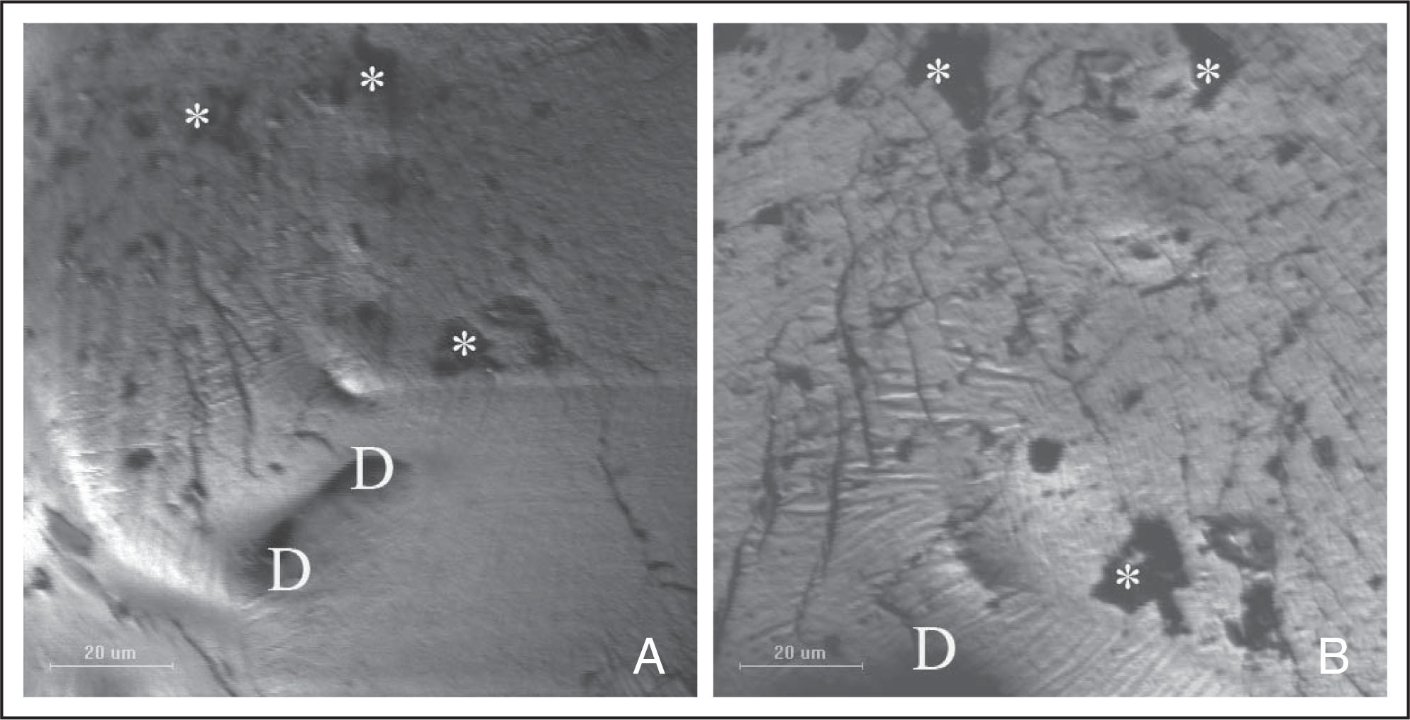 Scanning electron micrographs showing silicone oil droplets (*) and pits and depressions (D) on the posterior surface of the anterior lens capsules in the silicone oil tamponade group.