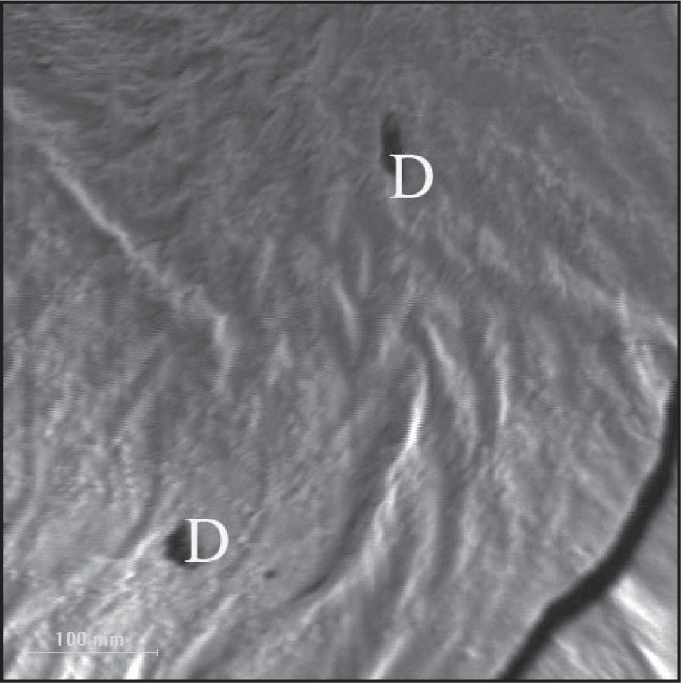 Pits and depressions (D) in the silicone oil tamponade group.
