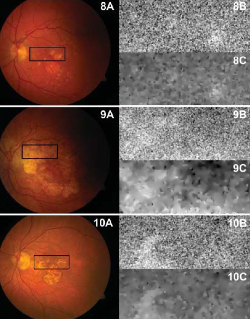 Flavoprotein fluorescence (FPF) of advanced dry (nonexudative) eyes with age-related macular degeneration with geographic atrophy. Color fundus photographs with the selected FPF analysis area highlighted in black (8A, 9A, 10A), corresponding FPF images (8B, 9B, 10B), and FPF images after anisotropic diffusion filtration (8C, 9C, 10C) of 71- (8A, 8B, 8C), 79- (9A, 9B, 9C), and 83- (10A, 10B, 10C) year-old eyes with advanced dry age-related macular degeneration and geographic atrophy.